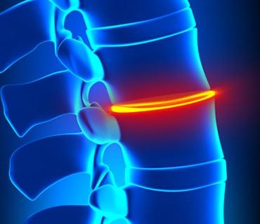 Image Spinal Stenosis